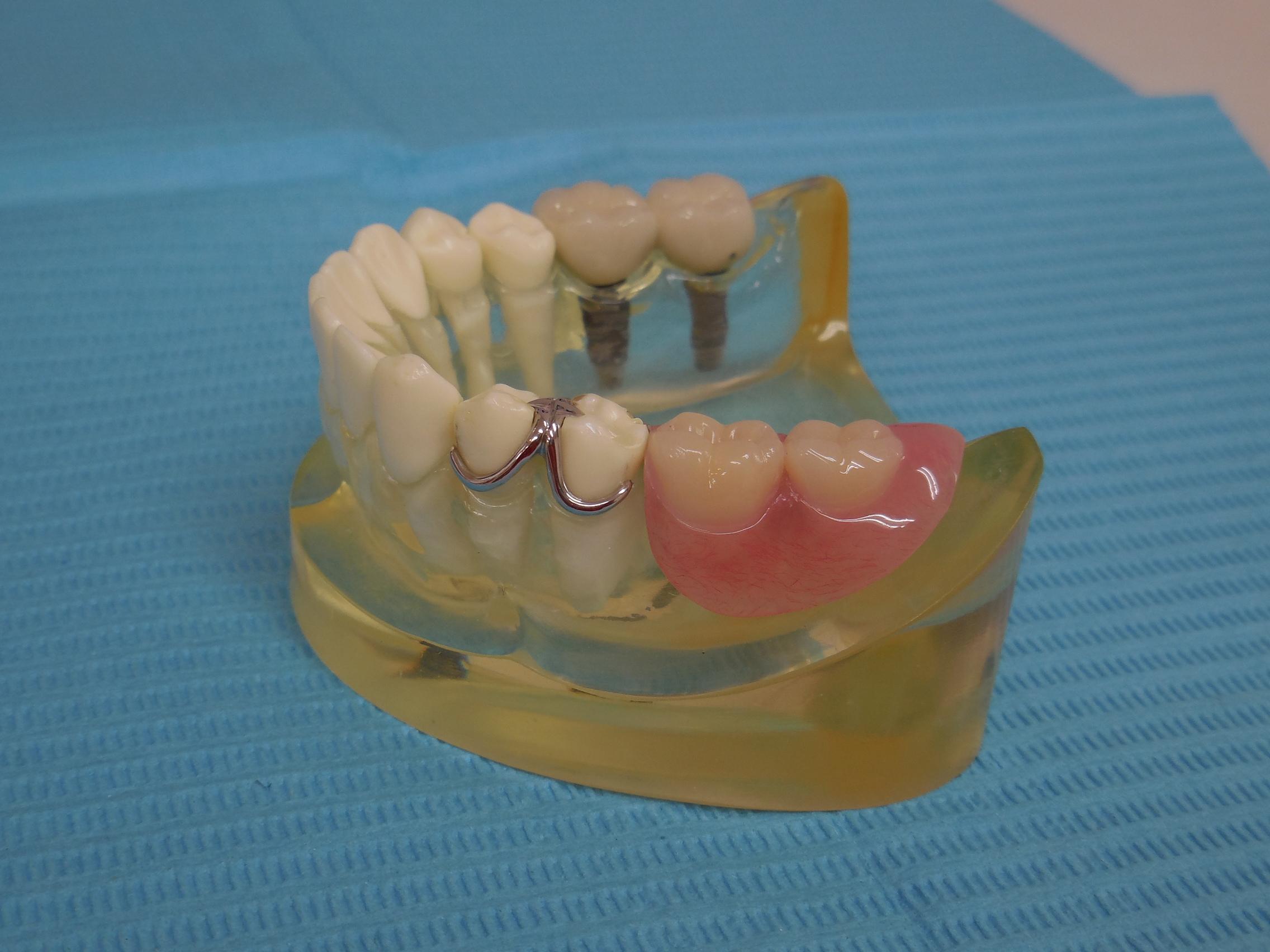 入れ歯 部分