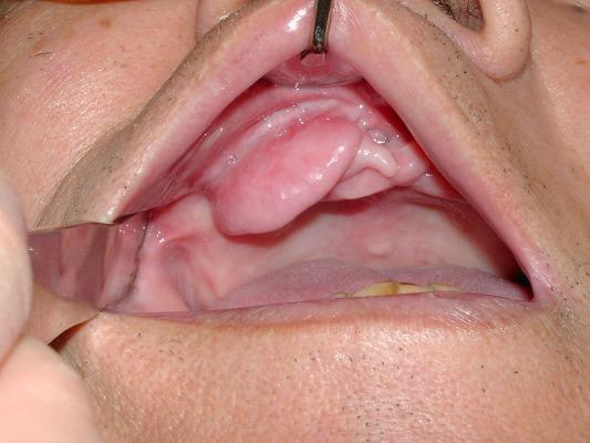 義歯性線維腫