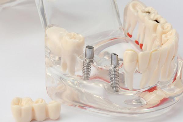 骨の再生・増生技術