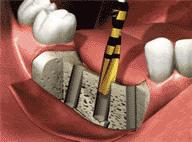 歯の欠損部分の歯茎を切開し、インプラント体と同じ大きさの穴を顎の骨に形成します