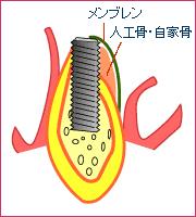 GBR(歯槽骨増生法)